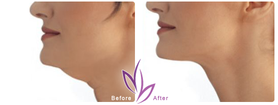 Get rid of Double Chin fast