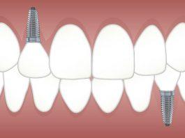 Replacing lost teeth