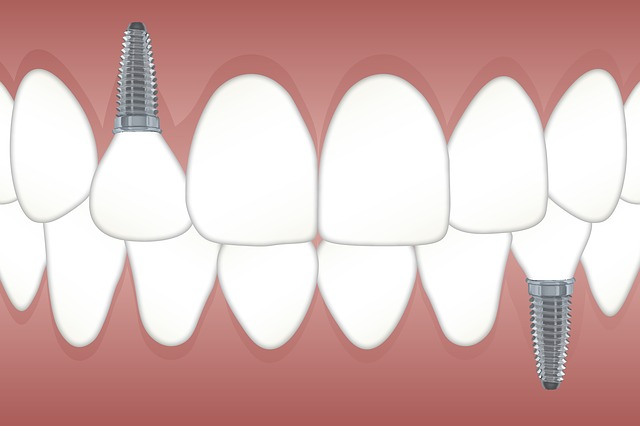 Replacing lost teeth
