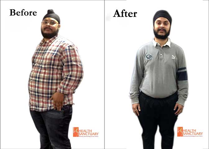 Arshdeep, Delhi based student lost 52 Kgs under Celebrity Nutritionist Shubi Husain's guidance