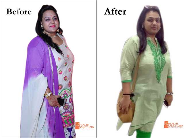Ms Mona, Lost 17 Kgs at Shubi Husain's Health Sanctuary