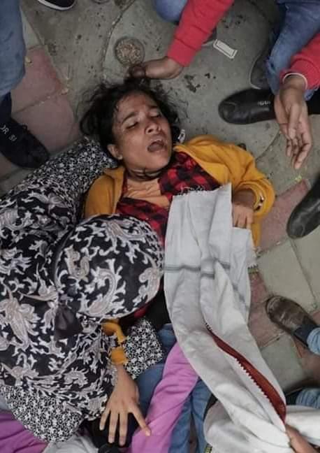 Injured Student Jamia - Anti-CAA Protest