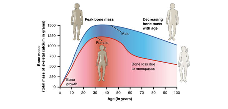Prevent Osteoporosis - Healthy Bones